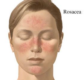 areas afectadas por acne rosacea