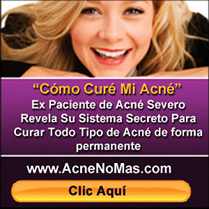 Acne No Mas - Como Cure Mi Acne