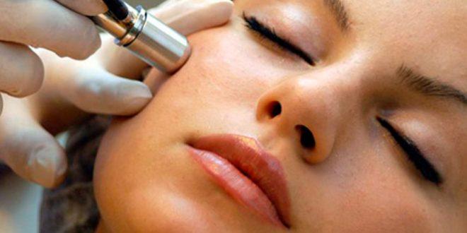 Tratamientos para Remover las Cicatrices de Acne